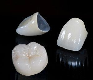 Co Cr Non-precious Alloy PFM Dental Crowns PFM Non-Precious
